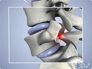 images/pages/spondylolisthesis.png